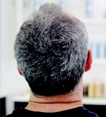 Men's hair replacement