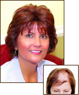 Hair Replacement at Salon Rispoli